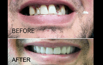 denture patient before and after